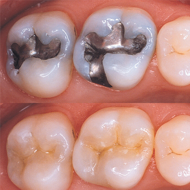 Front Tooth Cavity Filling in Calgary