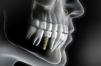 Implants Dental