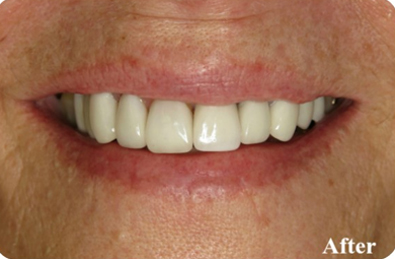 Replacement Teeth in Calgary