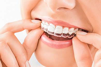 Invisible Braces in Calgary