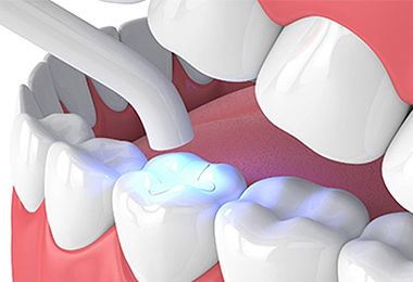 Front Tooth Cavity Fillings in Calgary